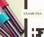 Exame PSA